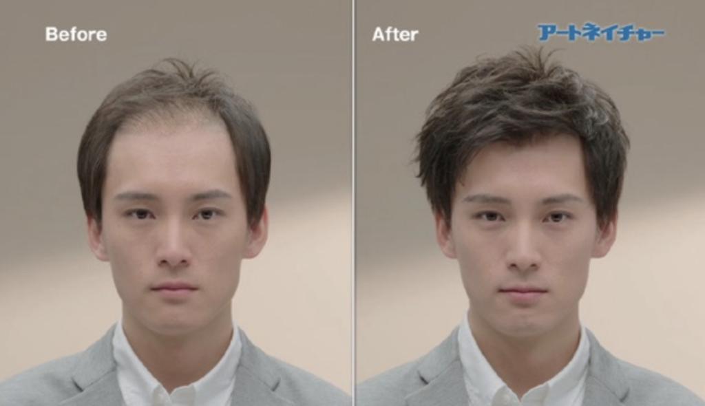4Dαは全く新しい増毛方法