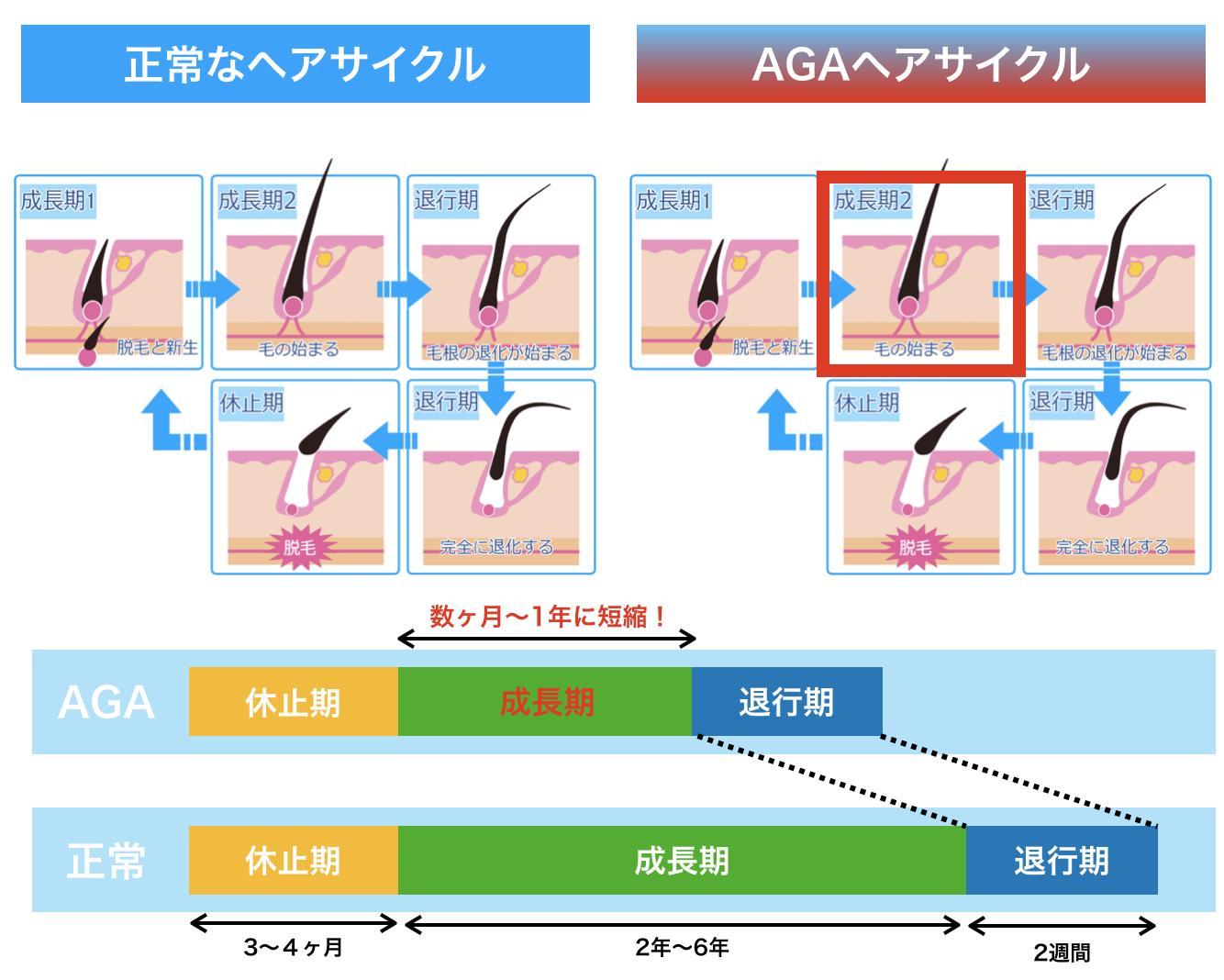 疑問1.AGAと、年齢的な薄毛は何が違うのか?