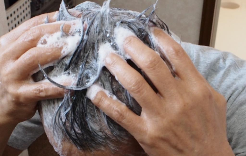 頭皮に湿疹ができる原因は髪の洗い方が悪い