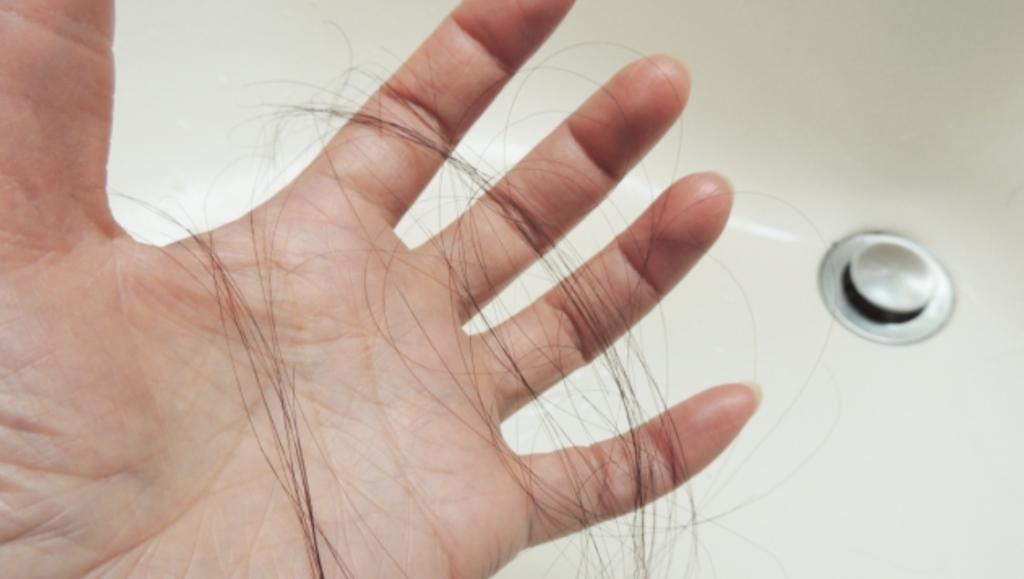 女性の薄毛の原因は加齢