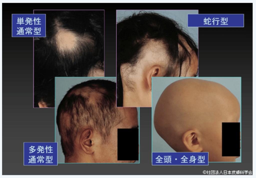 円形脱毛症の病型