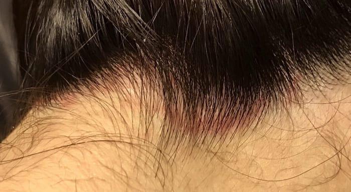 脂漏性皮膚炎などの病気でフケがでることもある