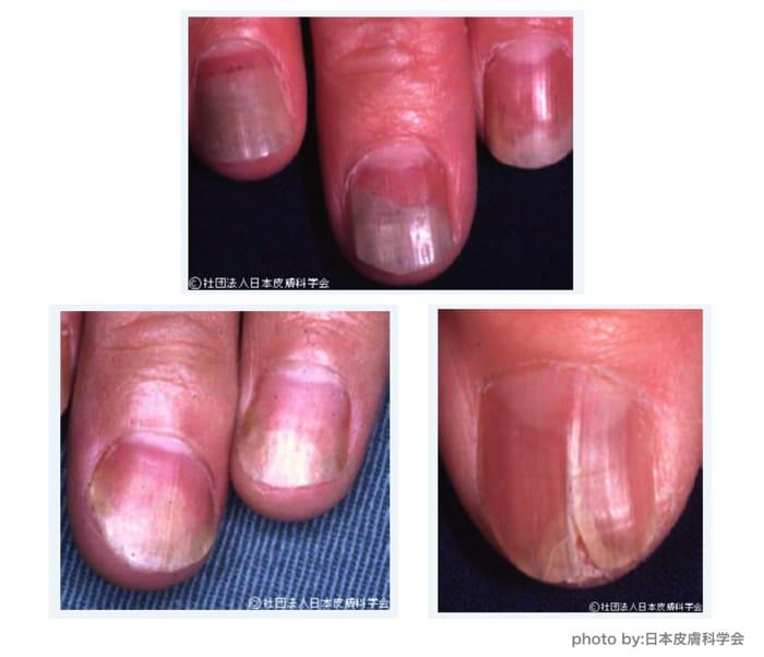 爪が病気かどうか判断する基準