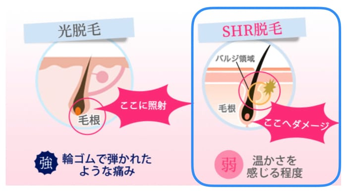 SHR脱毛器の違いについて