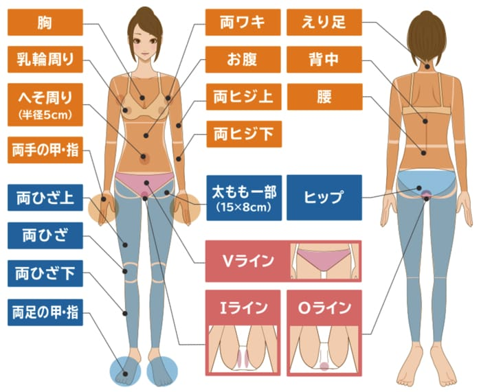 全身脱毛セット(VIO付き)の部位について